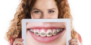 Il rapporto tra le recidive ortodontiche e la Terapia Manuale Neuro Sensoriale